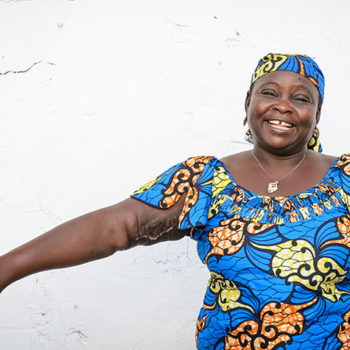 After free surgery from Mercy Ships, Fanta is happy and healthy.