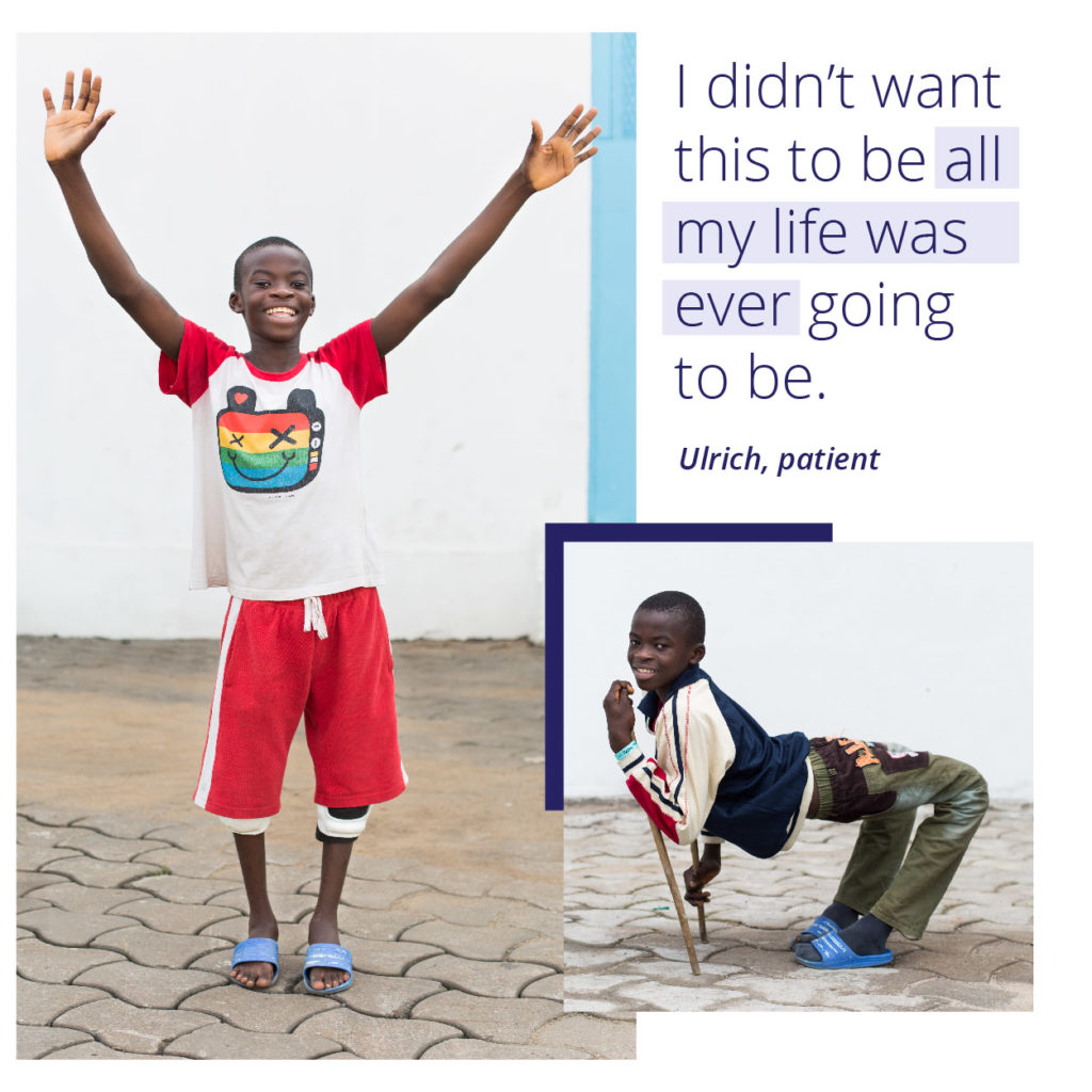 Mercy Ships patient Ulrich received free surgery to straighten his legs.