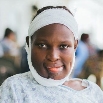 Isatu during recover after free surgery